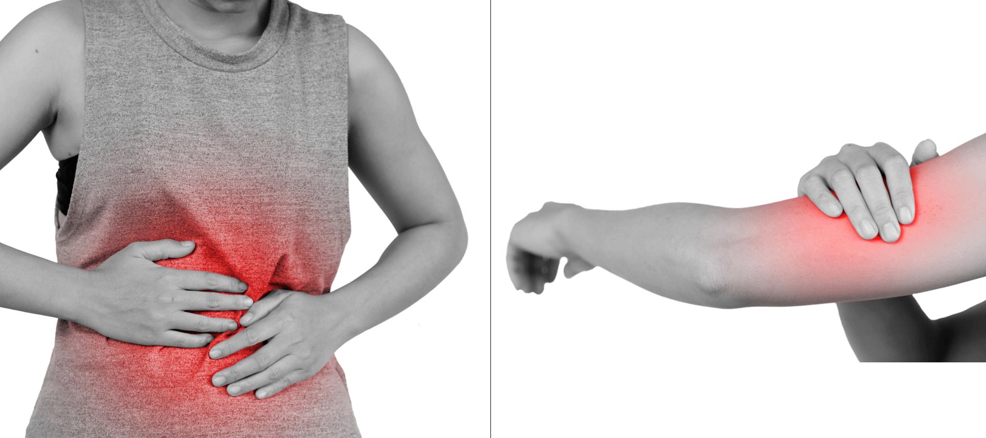 אישה עם אישה עם דלקת במעיים ודלקת בזרוע - דלקת היא לא מחלה בפני עצמה אלא סימפטום של בעיה אחרת.דלקת במעיים ודלקת בזרוע